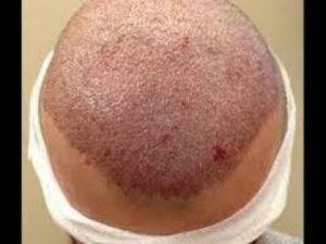 مضار زراعة الشعر النزيف الخارجي