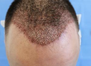 مضار زراعة الشعر
