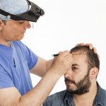 أعراض فشل زراعة الشعر